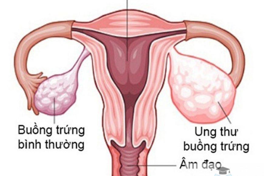 Những triệu chứng sớm của ung thư buồng trứng ở phụ nữ